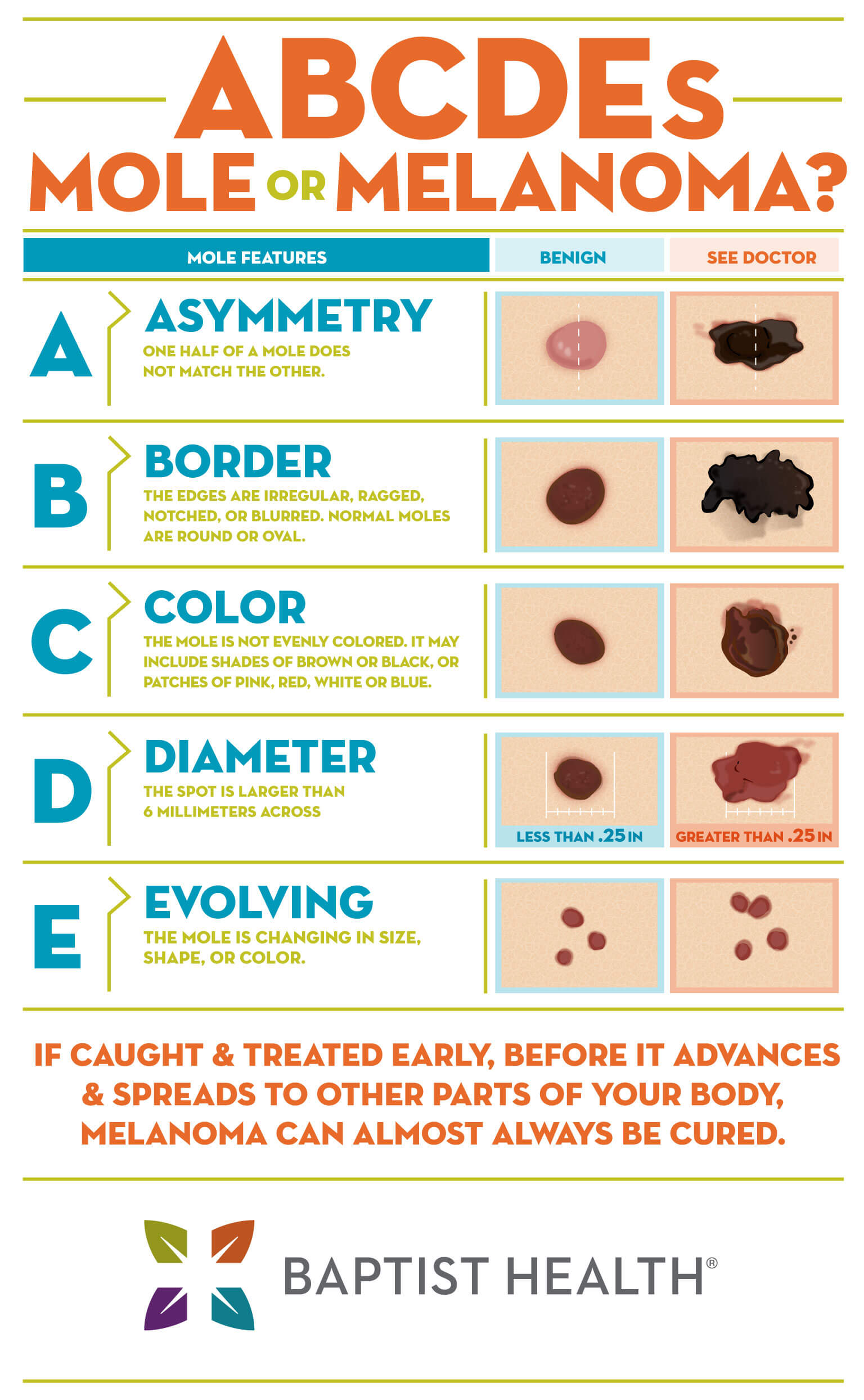 ABCDE's of melanoma